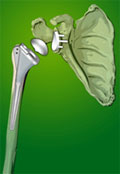 afi joint replacement best knee replacement surgeon in noida