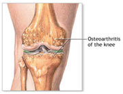 afi joint replacement best arthritis specialist in noida