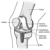 afi joint replacement joint replacement in noida