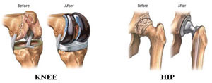 afi joint replacement knee replacement surgeon in noida